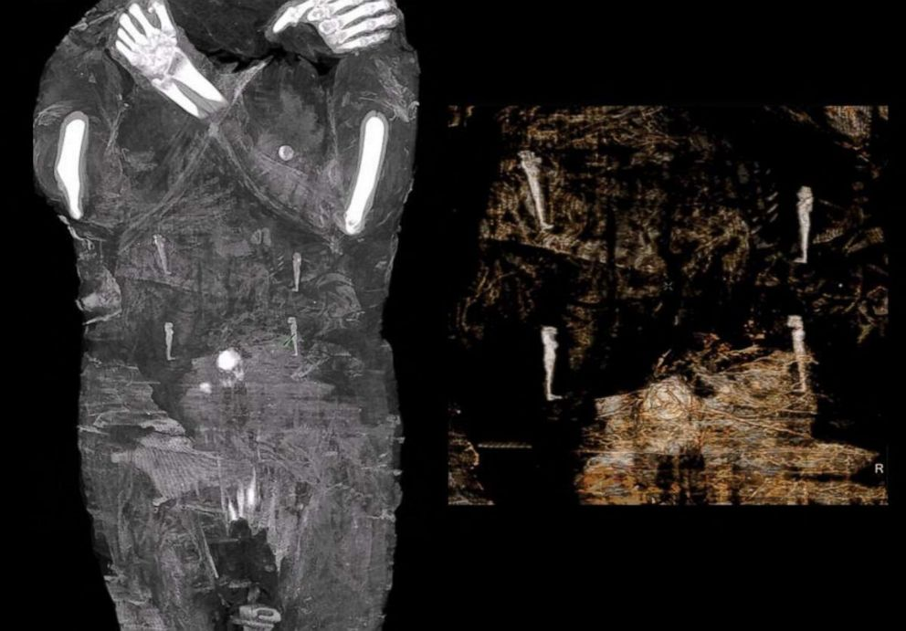 The world's first pregnant mummy, as seen in scans. Photo courtesy of the Warsaw Mummy Project.