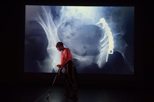 (do not) despair solo (2018). Performance, Abrons Art Center. Image credit: Ian Douglas. Image Description: On stage, Perel leans across their cane in front of an X-Ray projection showing screws and a rod inside of a hip socket. They wear black leather pants, and a golden sleeveless top lit up by a pink light from the side.